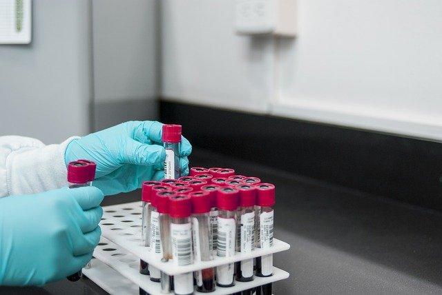 Blood Tubes, phlebotomy, science, centrifuge, doctor, nurse